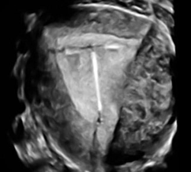 Korrekte Lage der Spirale in der Gebärmutter